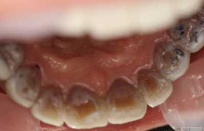 四环素牙齿修复 你确定这不是一个大笑话吗