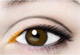 开眼角会留疤吗 别人一看?#21069;?#23601;知道了