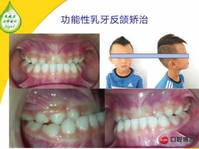 乳牙正畸 反合系列矫治之乳牙矫治