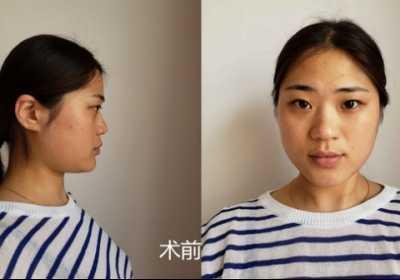 隆鼻手术过程 一个挺翘的鼻子是怎样诞生的