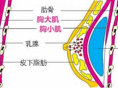 乳房下垂原因 常见的胸下垂原因70%的人不清楚